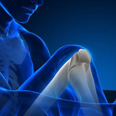 Human knee bones in x-ray view